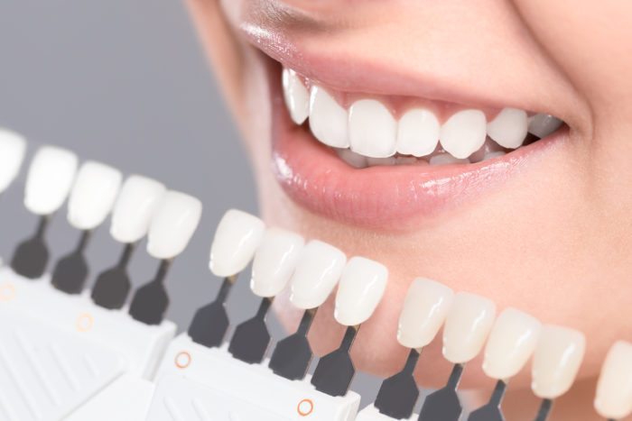Affordable Teeth Whitening in Altamonte Springs FL