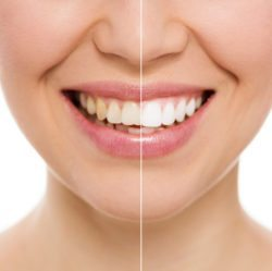 teeth whitening before and after discolored teeth Orlando Florida