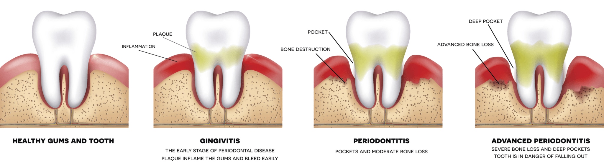 Periodontal treatment in Seminole County Florida