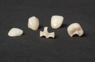 dentist in altamonte springs florida
