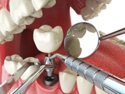 altamonte springs, florida dental implants