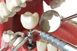 altamonte springs, florida dental implants